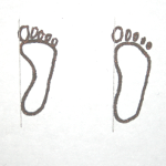diagram showing the difference between flat foot and normal footprint
