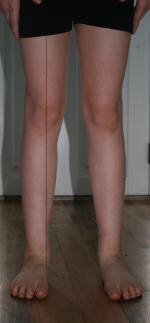 image demonstrating overpronation in a child aged 12 with flat feet